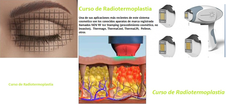 Radiotermoplastia