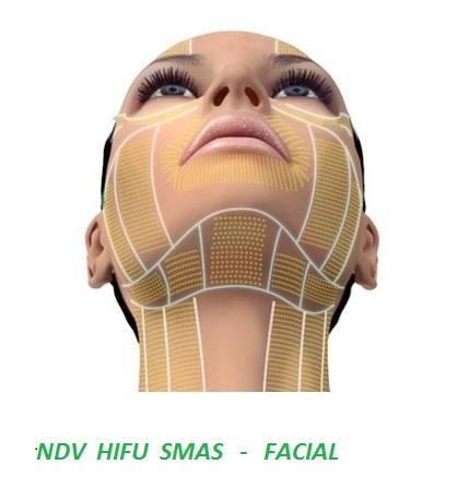 hifu-ultrasonido-focalizado