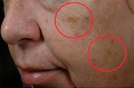 ¿Cómo mejorar una piel con lentigos solares?
