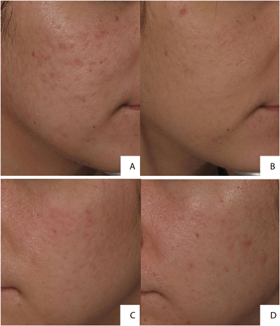 Un mes después del tratamiento con Accutane se puede aplicar la terapia láser fraccionado de Erbio para cicatrices de acné