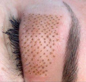 Tratamiento rejuvenecedor para la piel con NDV Smart Plasma (Fibroblast)