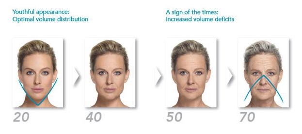 loss-of-facial-volume