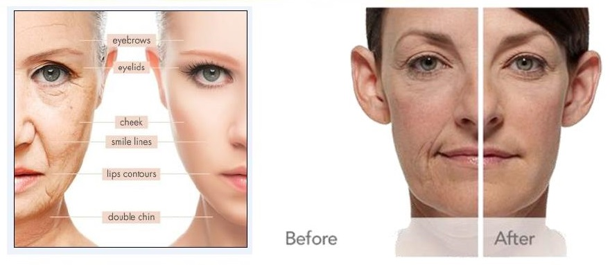 HIFU Facial, Energíade Activación (Vibración Biomolecular), En cuantotiempose ve el resultado?