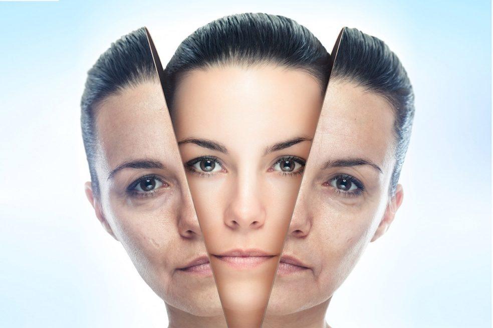 ¿Cómo funciona el estiramiento de la piel por plasma?