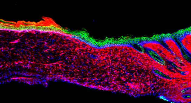 Generar Piel nueva reprogramando las células de una herida abierta