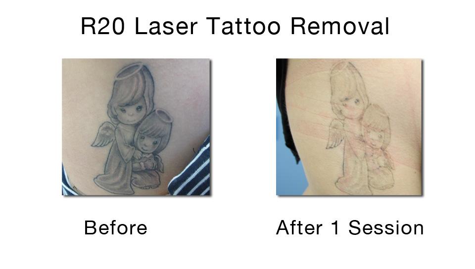 """""""Eliminación óptima de tatuajes en una única sesión de láser basada en el método de exposiciones repetidas"""""""