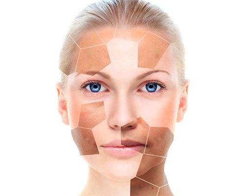 ¿Hiperpigmentaciones.  Por qué se producen y qué tipo hay?