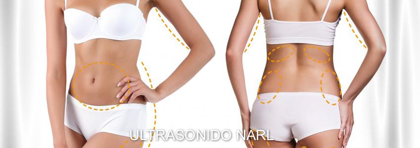 Tratamiento de adiposidad localizada con Ultrasonidos NARL