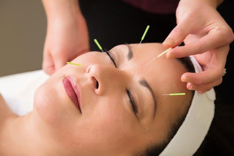 La acupuntura facial junto a la terapia LED y el masaje con piedra de Jade puede sustituir al botox