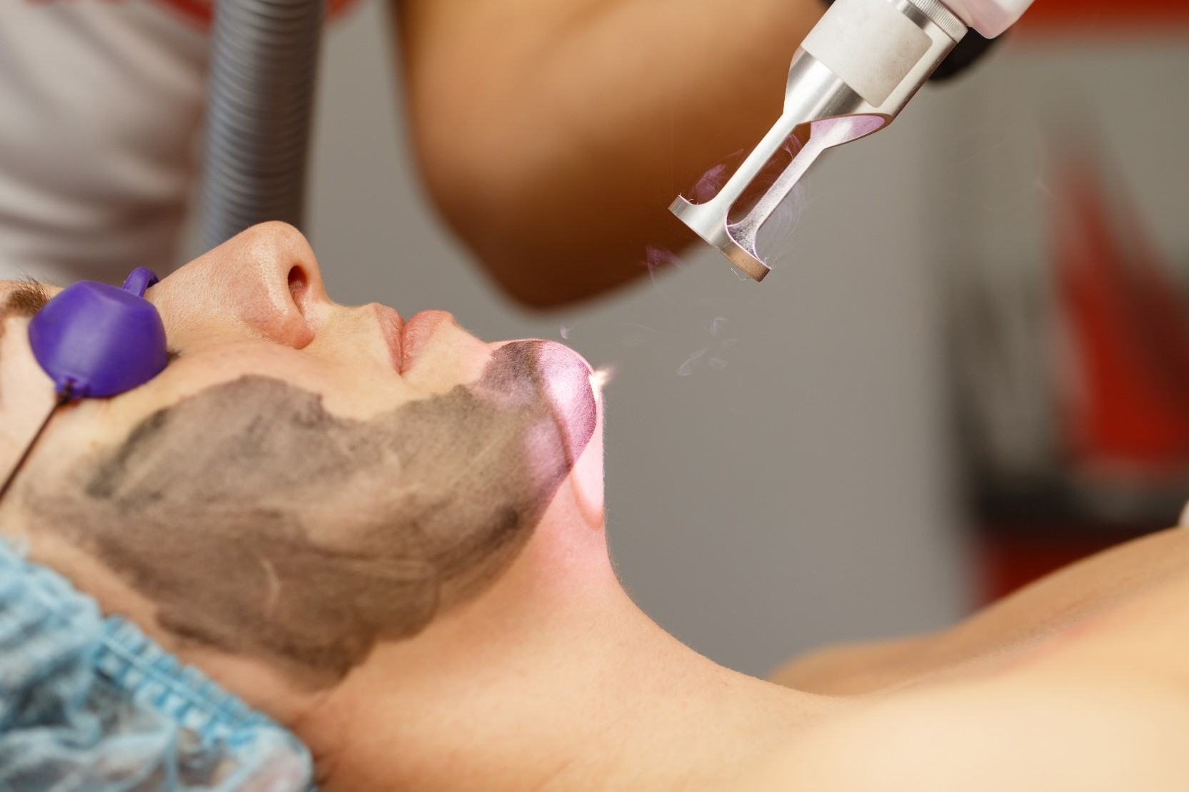Carbón Peel (peeling de Carbono) El tratamiento de l@s Celebrities ¡No te pierdas el mejor tratamiento de belleza!
