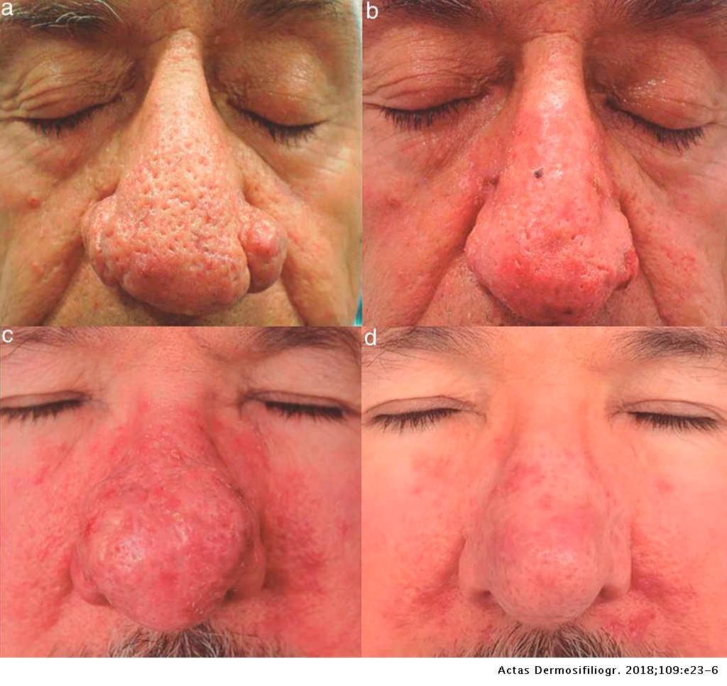 """Tratamiento ambulatorio de rinofima """"nariz roja"""" (rosácea fimatosa) con protocolo combinado de láser Neodimio:Yag y láser de CO2"""