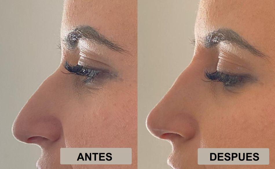 Rinomodelación– Rinoplastia no quirúrgica (Relleno de nariz), nariz ideal en 5 minutos sin cirugía